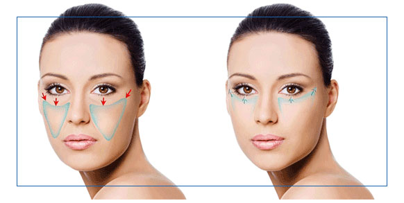 zones lifting visage tunisie