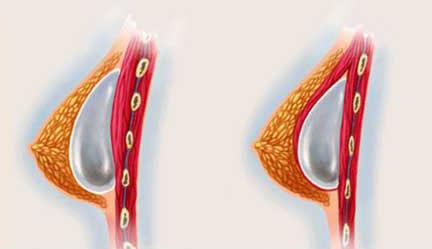 augmentation mammaire prothese Tunisie