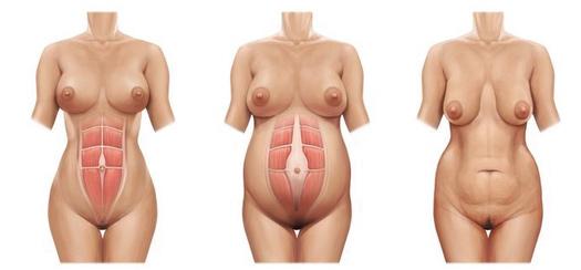 chirurgie ventre Tunisie