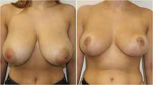 reduction mammaire tunisie photos avant apres