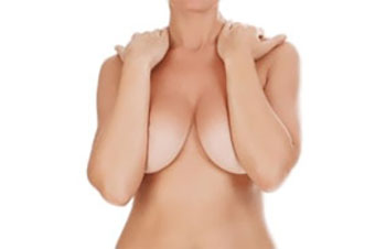 med-reduction-seins