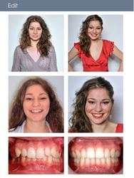 Des Implants Haut de Gamme Pour Retrouver Un Sourire Impeccable