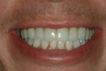 Pose de facettes dentaires adaptées à la forme des dents et à l'état des gencives.
