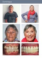 Remplacement des dents manquantes et défectueuses par facettes et implants dentaires.