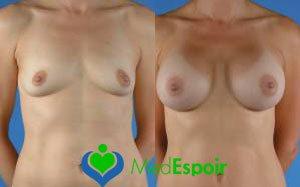 augmentation des seins avant apres