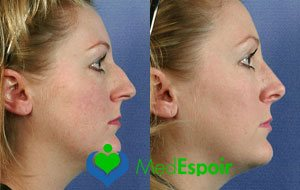 chirurgie du nez avant apres