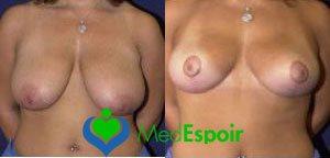 réduction des seins avant apres