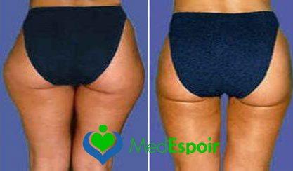 résultat liposuccion cuisses et hanches