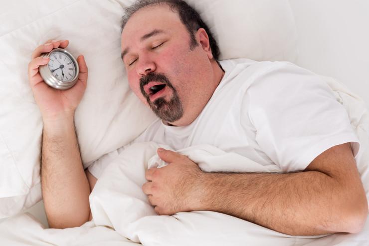 obesite masculine