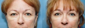 blepharoplastie superieure photo avant apres