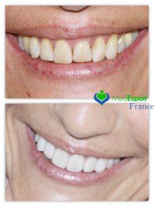 facettes-dentaires-tunisie-avant-apres