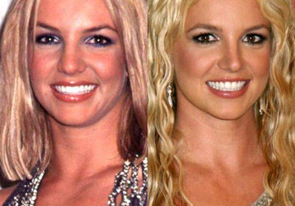 Stars succombées à la rhinoplastie : Avant et Après l'intervention de chirurgie du nez !
