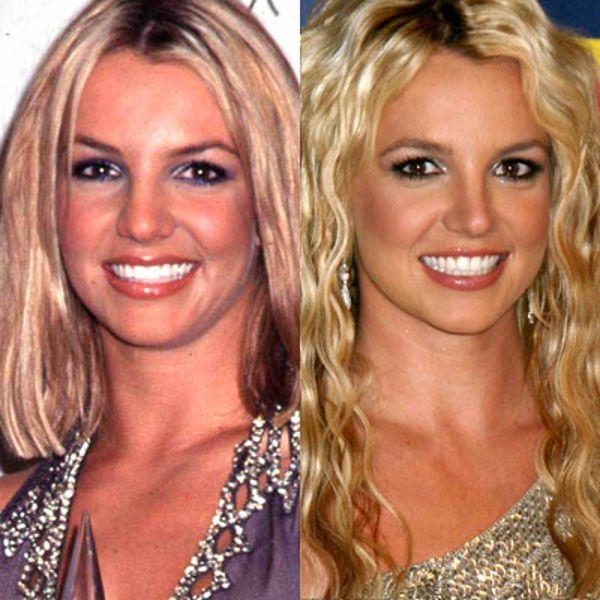 Britney Spears rhinoplastie