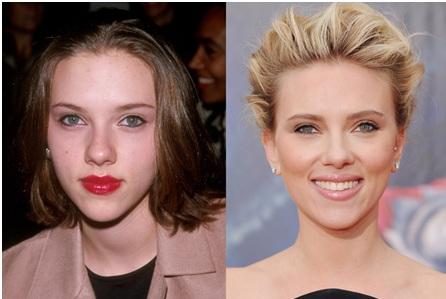 rhinoplastie Scarlett Johansson