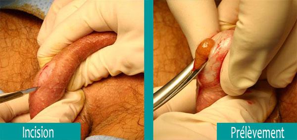 biopsie-testiculaire-tunisie