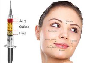 lipofilling traitement rides visage