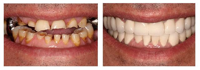 resultat-pose-facettes-dentaires