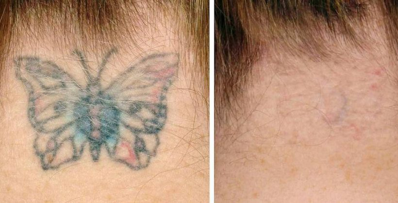 Retrait du tatouage : Les lasers surpassent les autres techniques