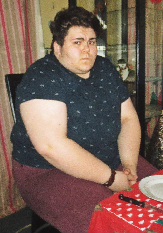 Adam témoigne sur Twitter de sa perte de poids due à une sleeve