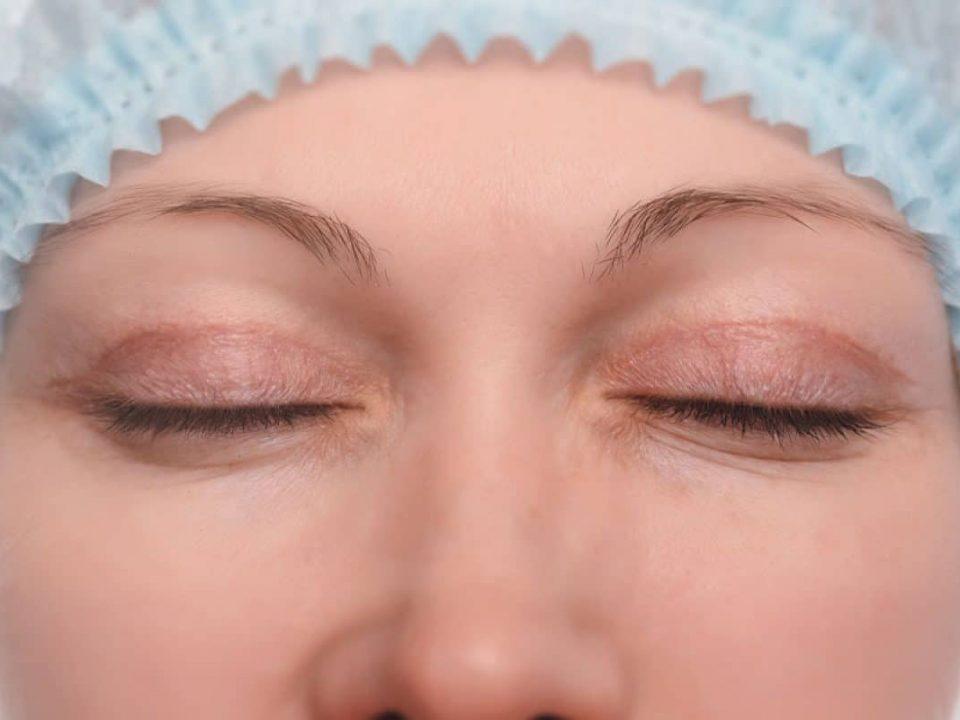 chirurgie-esthetique-blepharoplastie