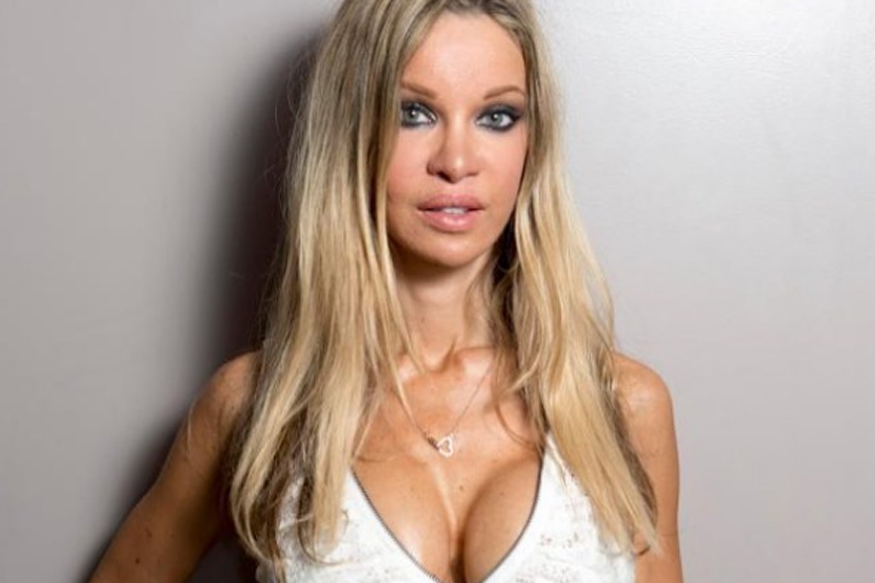 Alicia-Douvall-chirurgie-esthetique