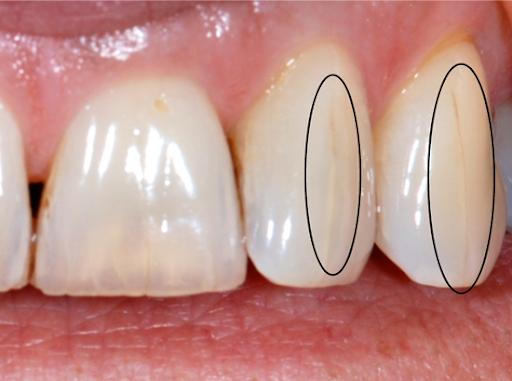 Le syndrome de la dent fissurée