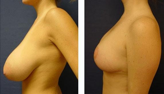 réduction mammaire paris avant après
