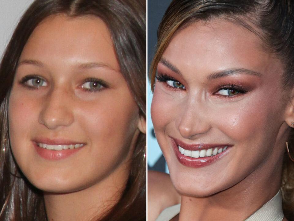 Bella Hadid avant et après