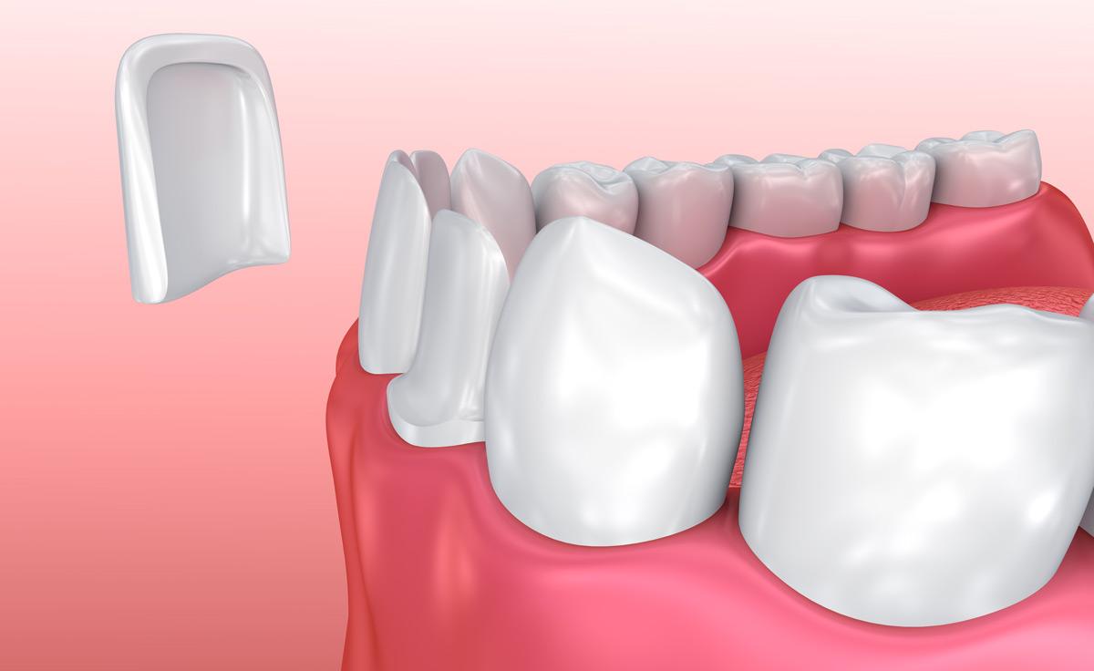 Facettes dentaires Maroc